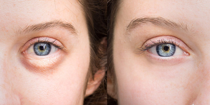 7 Reasons You Have Puffy Eyes and How to Fix Them